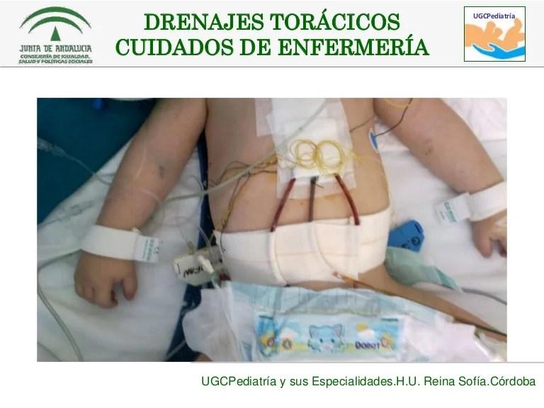 Drenajes torcicos en pediatra Cuidados de enfermera