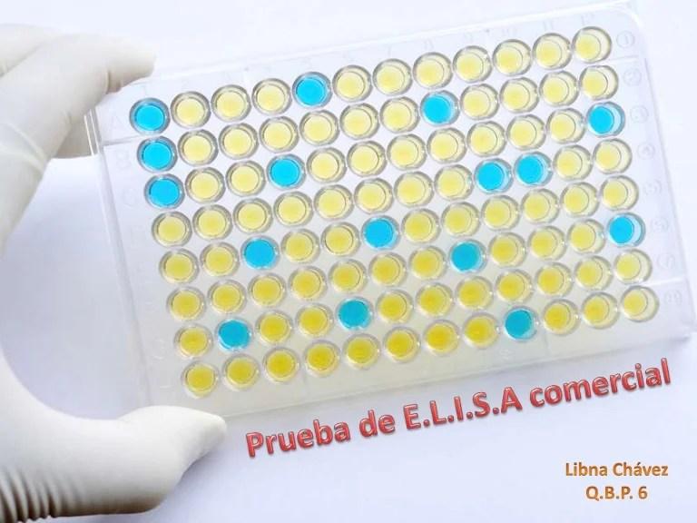 PRUEBA ELISA