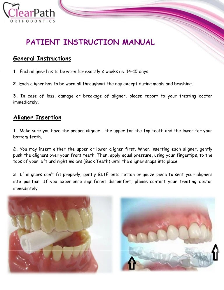 How Should Aligners Fit : should, aligners, ClearPath, Aligners, Patient, Manual