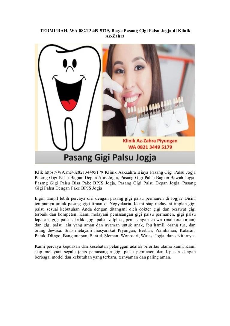 Biaya Pasang Gigi Palsu : biaya, pasang, palsu, Termurah,, 5179,, Biaya, Pasang, Palsu, Jogja, Klinik