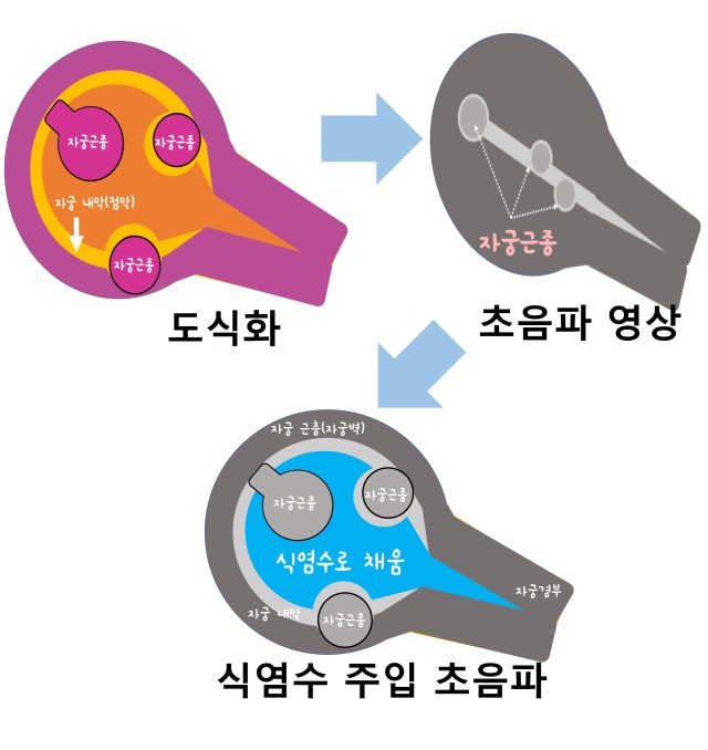 식염수주입초음파.jpg