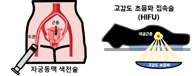 자궁근종 치료- 자궁동맥 색전술, 하이푸