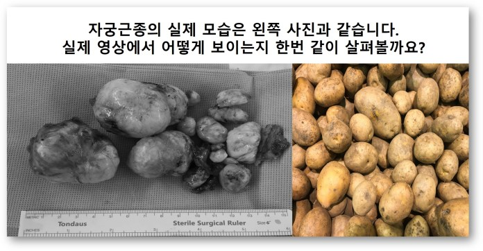 감자같은 자궁근종