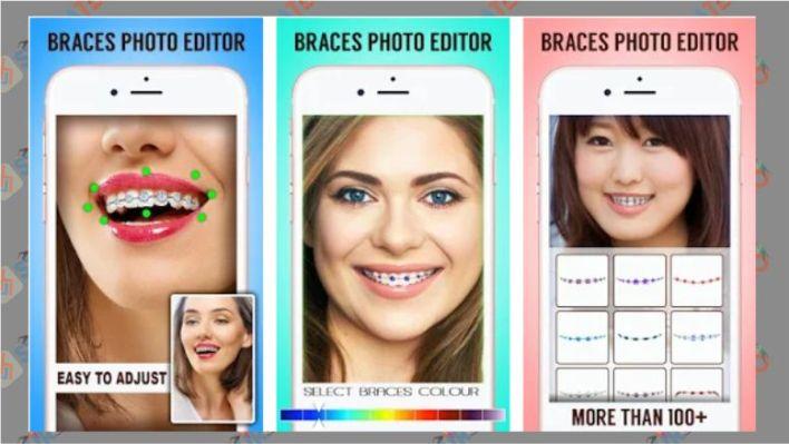 kawat gigi 2.0