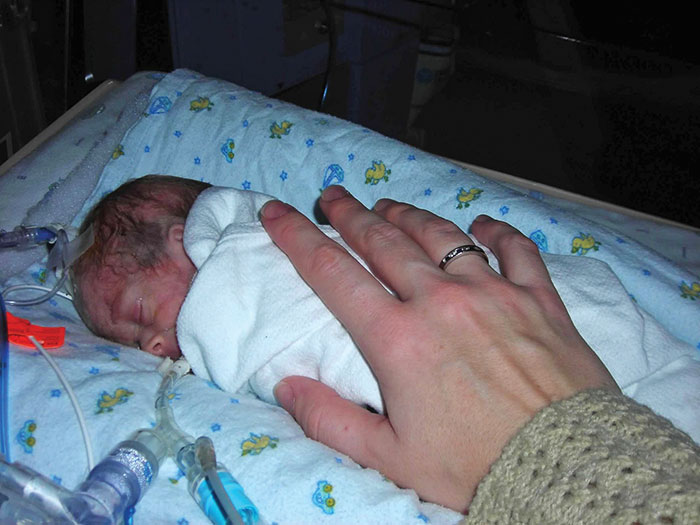 Photo of infant