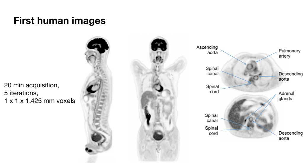 First high-speed full-body 3D scanner ready for clinical