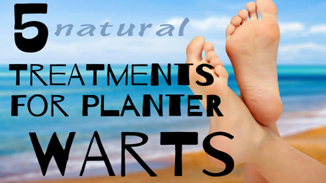 Plantar Warts Diagram Plantars Wart