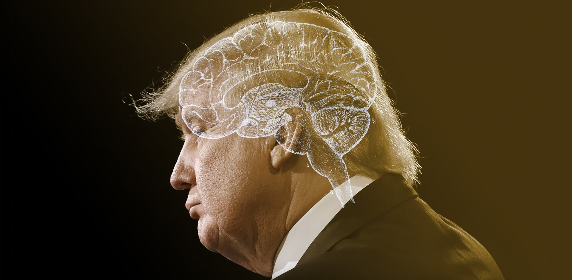 Is There Something Neurologically Wrong With Donald Trump