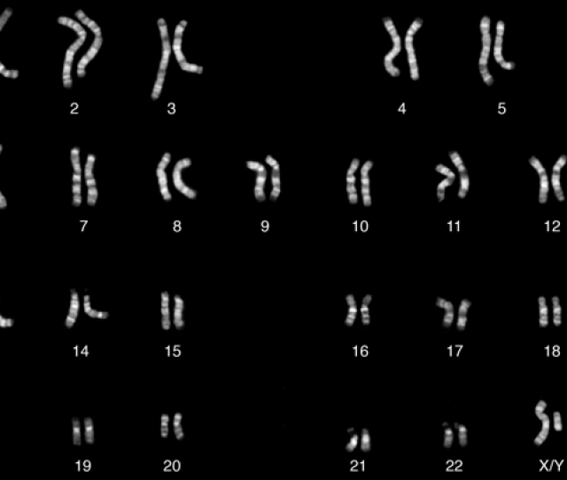 Chromosomes Of A Male Individual With Y In The Lower Right Corner