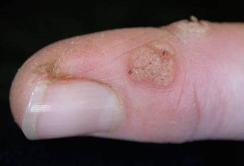 Health Check do home remedies for common warts really work