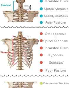 Via braceability also exercises for lower back rh thewhoot