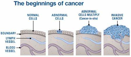 Cancer Progression Diagram