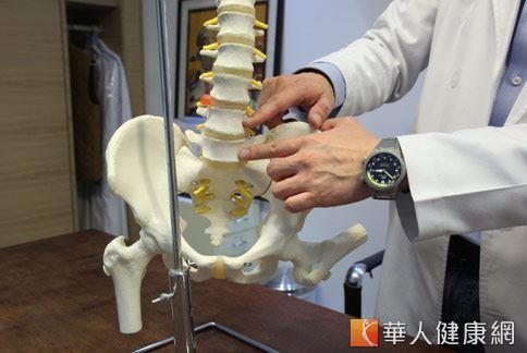 腰椎滑脫是指腰椎的椎體往前移位,容易產生腰痛或坐骨神經痛的症狀。(攝影/江旻駿)