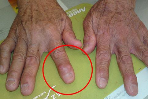 圖片搜尋: 關節炎