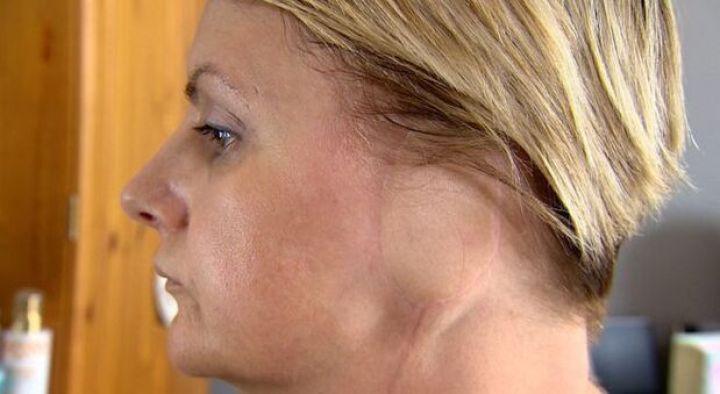 Mulher diz que perdeu orelha por causa de vício em bronzeamento artificial