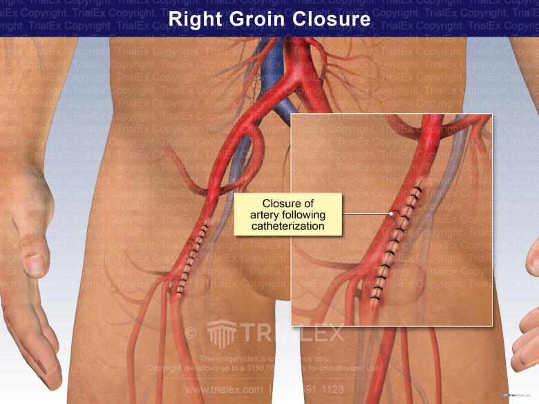 Right Groin Closure - TrialExhibits Inc.
