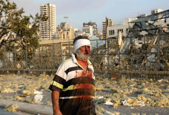 Nổ lớn ở Lebanon, ít nhất 78 người thiệt mạng và gần 4.000 người bị thương - Ảnh 4.
