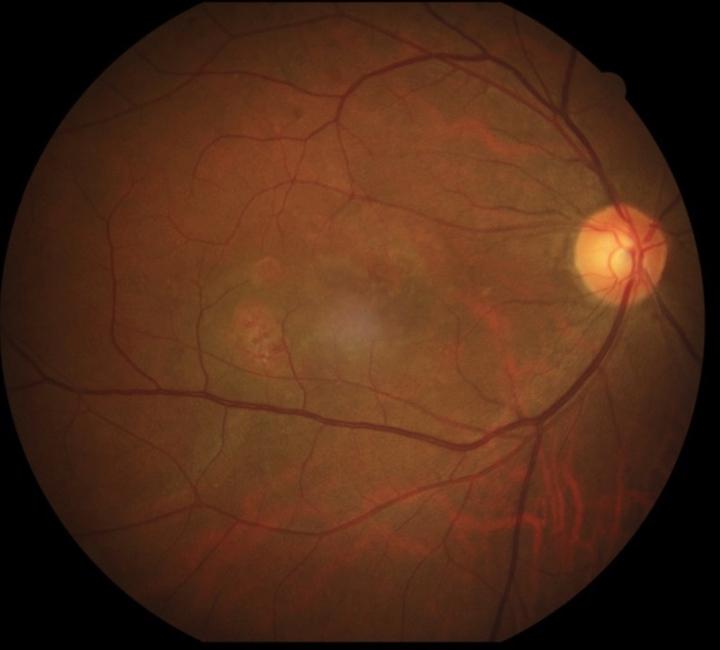 婦視力模糊扭曲 原來是老年黃斑部病變惹禍   生活   聯合影音