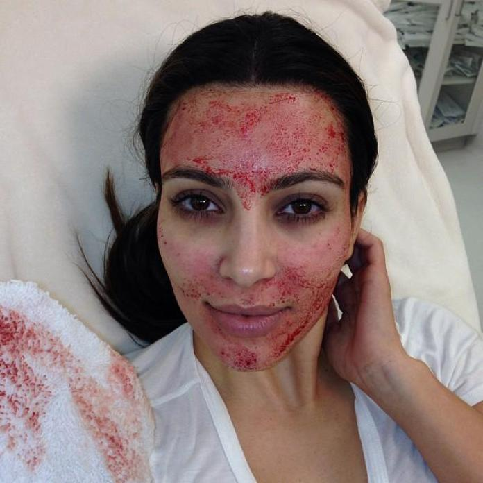 Micro needling made popular in the West: Kim Kardashian.