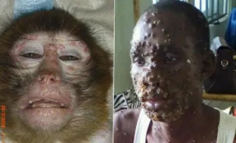 A-Ibom raises alarm over outbreak of Monkey pox in community