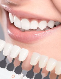 Dental veneers at fortitude valley dentist also spring hill qld rh fortitudevalleydentist