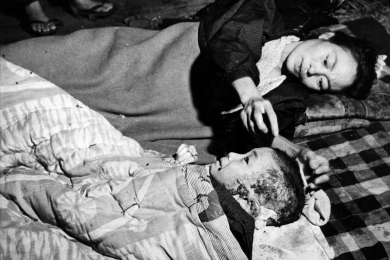 A mother tends her injured child, a victim of the atomic bomb blast at Hiroshima.