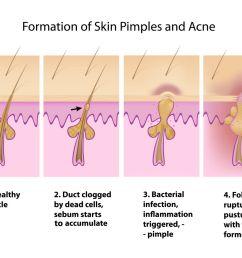 acne diagram [ 1200 x 960 Pixel ]