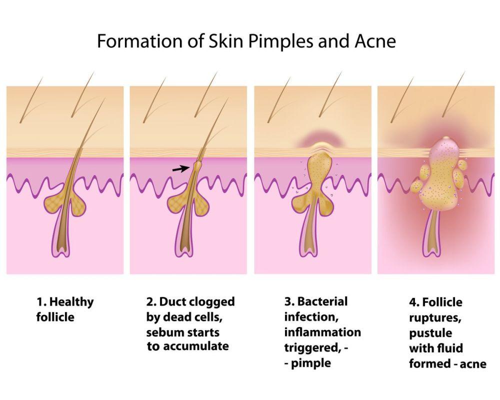 medium resolution of acne diagram