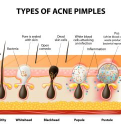 acne diagram 2 [ 1200 x 946 Pixel ]