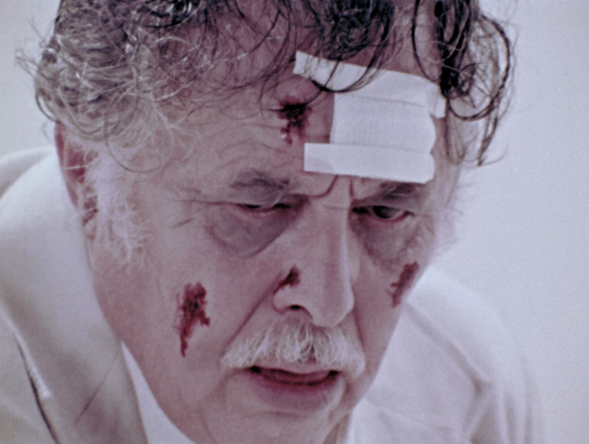 A closeup of an older man's bloodied and bandaged face in The Amusement Parkq