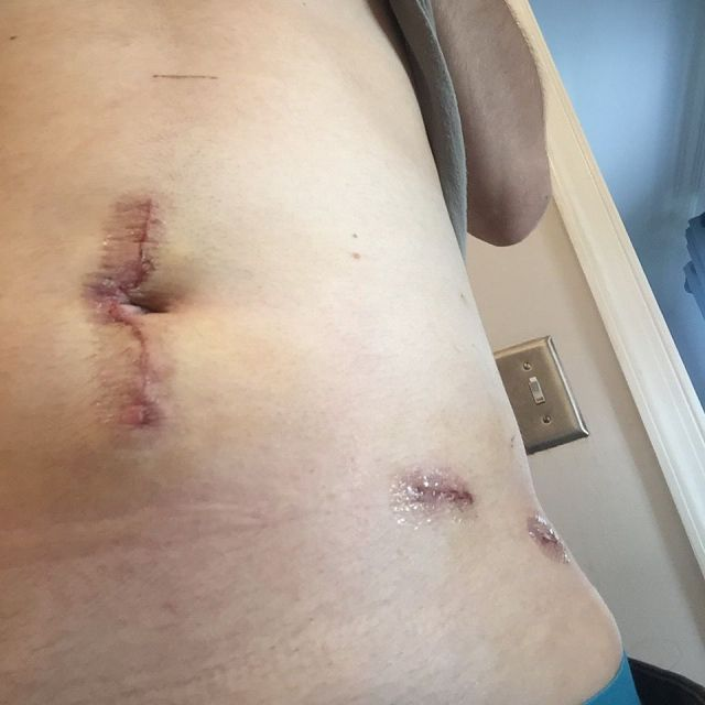 Dylan's post-surgical incisions