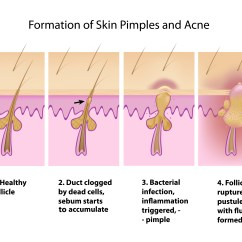What Causes Acne Diagram Real Human Why You Shouldn 39t Pop Pimples  And 9 Other Things To Know