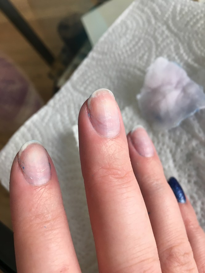 What Is The Best Way To Take Off Acrylic Nails
