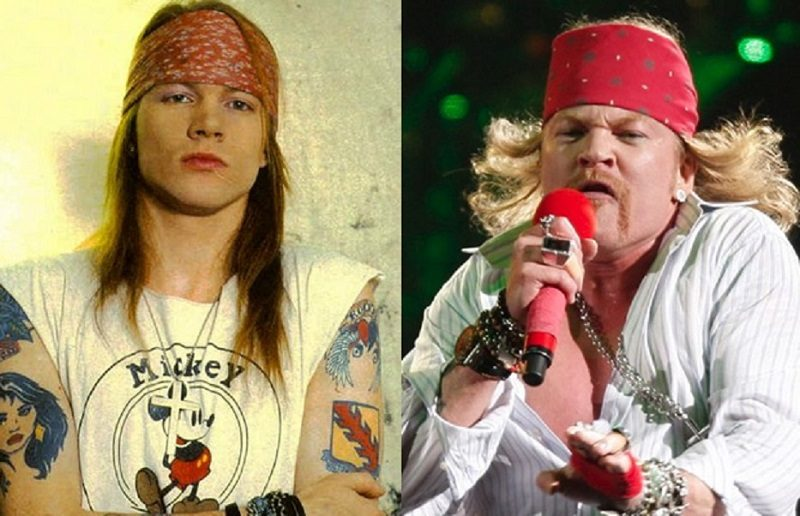 Axl Rose exige a Google retirar de internet sus fotos donde se ve gordo - axl-rose-plastic-surgery-before-and-after-1-800x516
