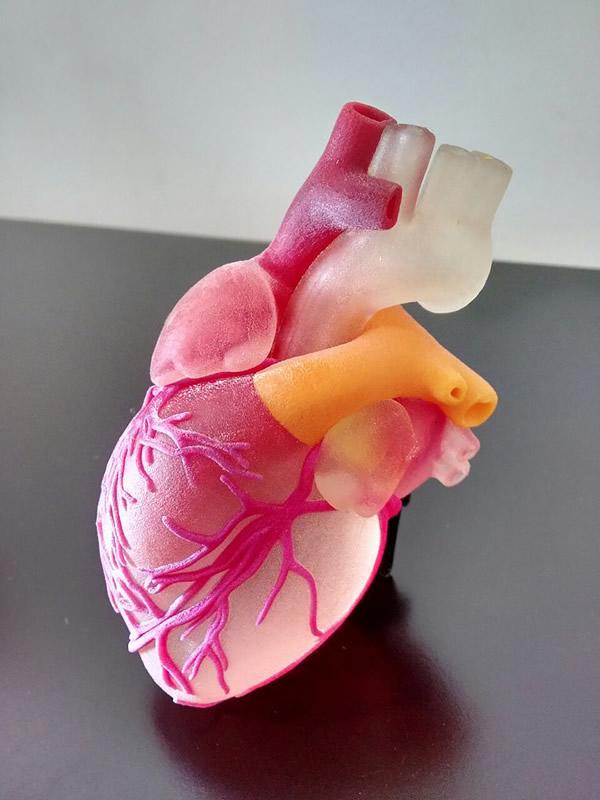 Jóvenes mexicanos reducen 30 por ciento costos de cirugías con modelos anatómicos - modelo-anatomico-3d