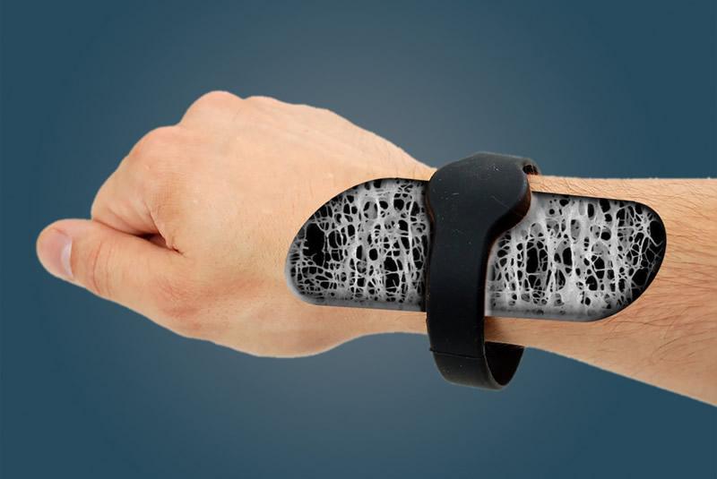 Mexicanos crean dispositivo no invasivo para la detección de osteoporosis - deteccion-de-osteoporosis