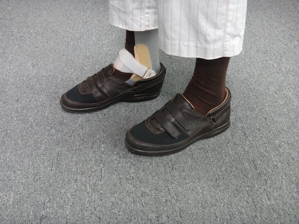 crean zapato biomecanico para personas con ferula1 Crean zapato biomecánico para personas con férula