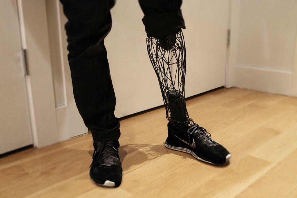 exo leg side Ingeniero mexicano crea una prótesis económica mediante impresión 3D
