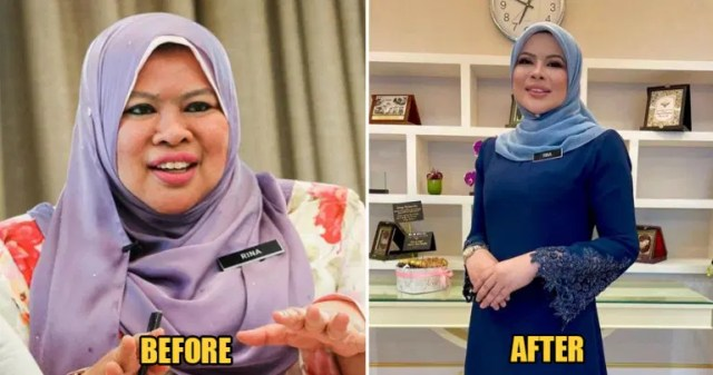 rina-harun-before-and-after