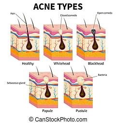 acne face diagram centurion keypad wiring vector illustration with hair pimple skin layers and types diseases anatomy medical