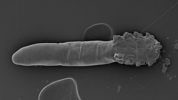 All Adults Have Face Mites New Study Shows