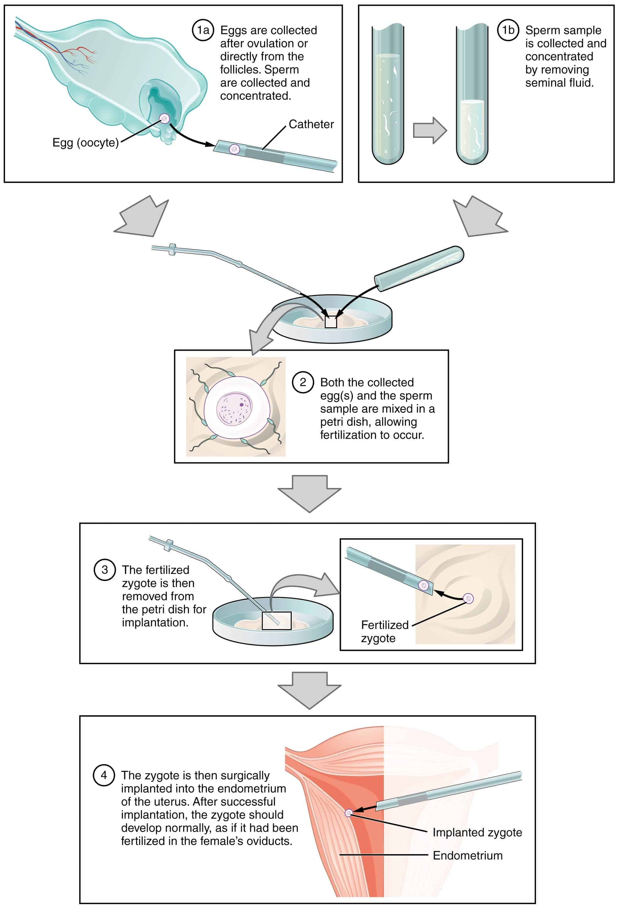 How In Vitro Fertilization Works From Petri Dish To Womb