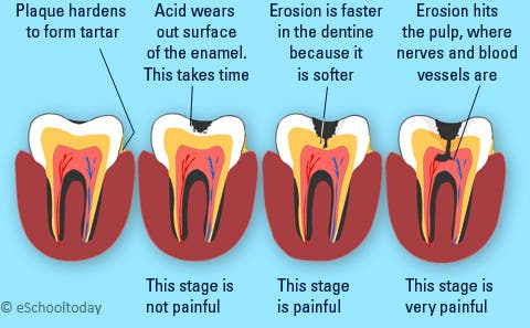 What causes cavities and how to spot tooth decay