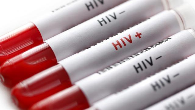 Cara Pencegahan HIV Sejak Dini, Serta Gejala yang Sering Tak ...