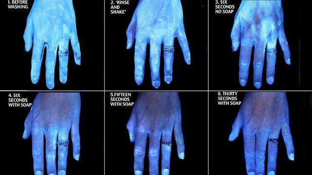 Foto Ini Tunjukkan Bukti Pentingnya Mencuci Tangan dengan Benar ...