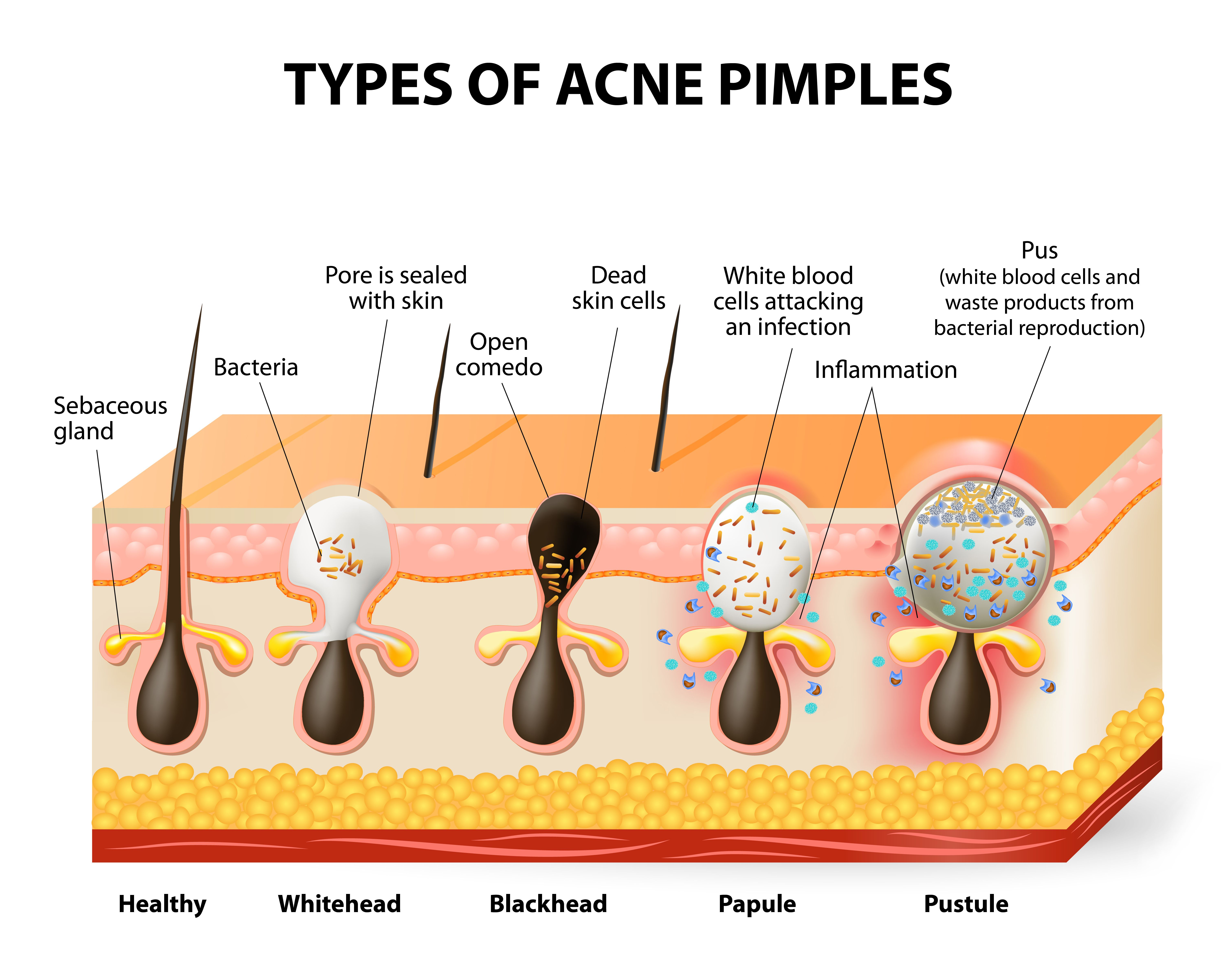 hormonal acne diagram 1995 gmc sierra ignition wiring why you shouldn 39t pop pimples  and 9 other things to know