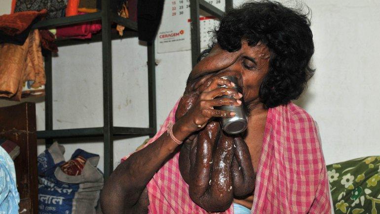 Kanai Das, un hombre pobre y enfermo, al que algunos confunden con un dios