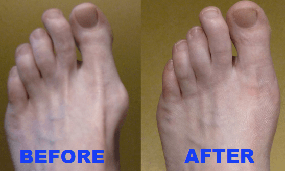 Image result for bunion correction