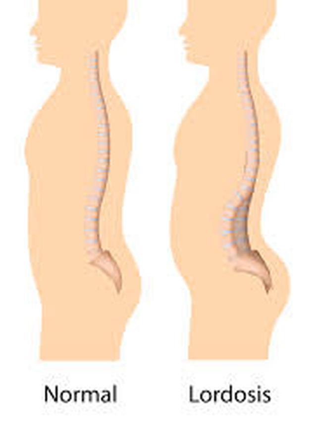 Kelainan Akibat Tulang Belakang Membengkok Ke Depan Disebut : kelainan, akibat, tulang, belakang, membengkok, depan, disebut, Kelainan, Tulang, Skoliosis,, Kifosis,, Lordosis, Liputan6.com