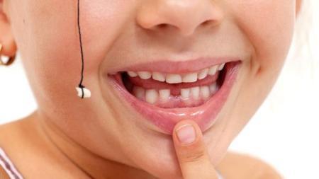 Mencegah Gigi Tumbuh Berantakan Sejak Dini